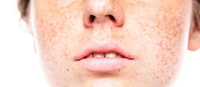 hyperpigmentation-&-age-spots